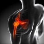 Как определить перелом плечевой кости и лечить его?