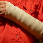 Как оправиться и восстановить руку после перелома?