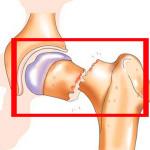 Травма шейки бедра одна из самых опасных
