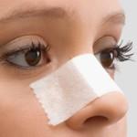 Всё об ушибе носа – от симптомов до лечения