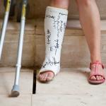 Всё о переломе ноги – от признаков до оказания первой помощи