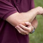 Как быть при переломе сустава локтя?