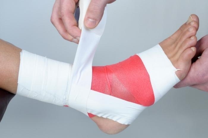 Компресс на сустав при ушибе на стопу ноги диклоран мазь для спины