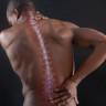 Что делать если вы потянули спину
