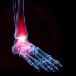 Какие переломы лодыжки бывают и как их лечить?