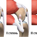 Определяем разрыв связки колена и лечим