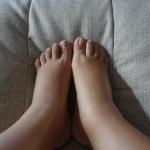 Отеки ног по различным причинам и снятие их