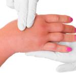 Как снять отек с пальцев рук?