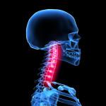 Ротационный подвывих — причины и особенности лечения