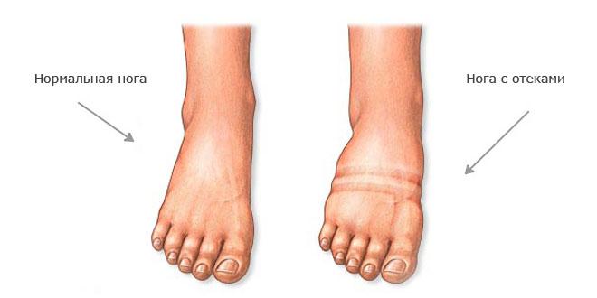 ноги: причины и лечение