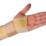 Растяжение запястья: берегите руки