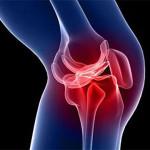 Грыжа коленного сустава — симптомы, лечение, возможные осложнения