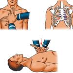 Массаж сердца при поражении электрическим током