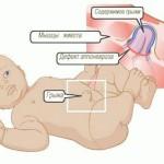 Симптомы и лечение пупочной грыжи у детей