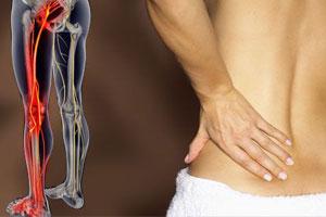 Боль в ягодице отдающая в ногу: как лечить?