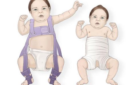Дисплазия тазобедренного сустава у новорожденных лечение