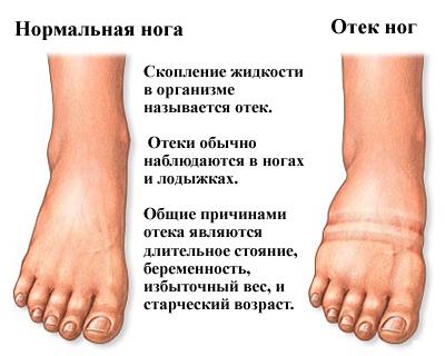 Как снять отек с ноги после перелома в домашних условиях?