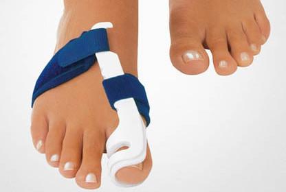 Косточка на большом пальце ноги: симптомы, как остановить ...