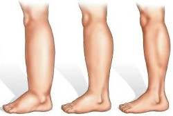 Быстро снять отёчность ног в домашних условиях