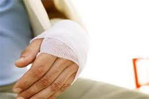 Перелом лучевой кости руки без смещения лечение срок сростания
