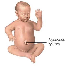 Пупочная грыжа у новорожденных: лечение в домашних условиях