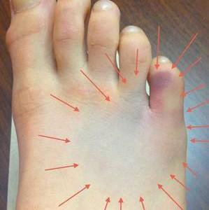 Перелом 5 плюсневой кости стопы: симптомы, причины, лечение