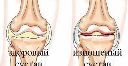 Артроз коленных суставов что это такое способ лечения
