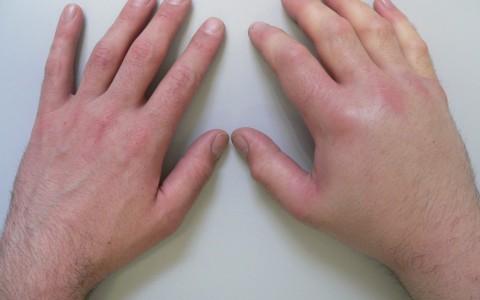 Отек руки от локтя до кисти: причины, лечение народными методами