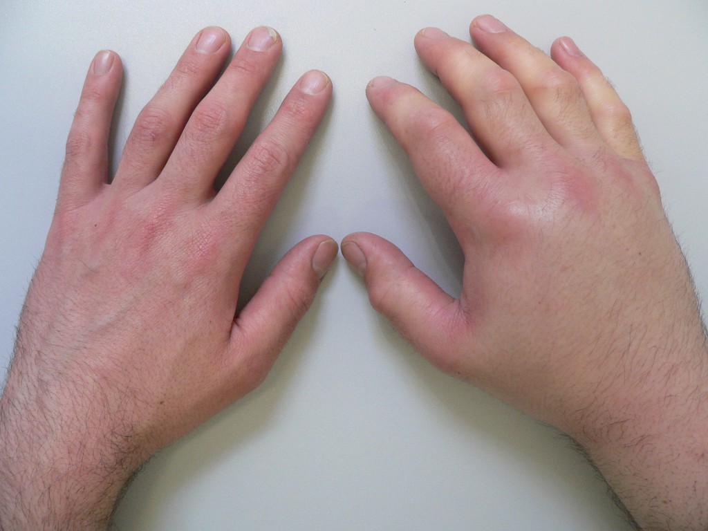 Кисть Руки