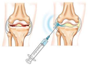 Гиперартроз коленного сустава что это такое чесночное масло суставов рецепт