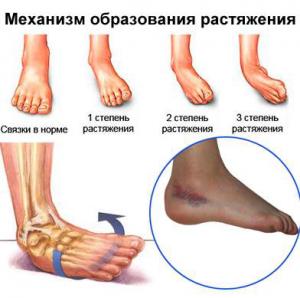 Растяжение ноги как лечить в домашних условиях