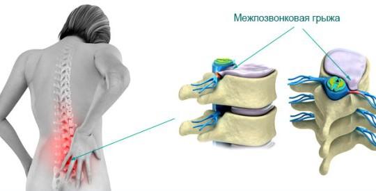 Дорзальная медианная грыжа диска: симптомы, лечение