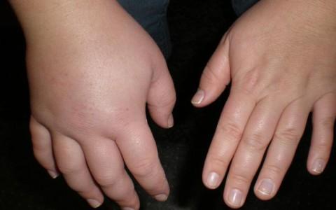 Причины отеков и задержки жидкости в организме