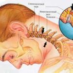 Ущемление нерва в шейном отделе позвоночника лечение